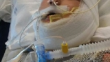 Boy burned in gasoline fire now fighting pneumonia