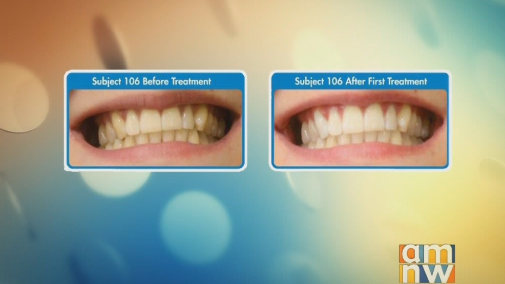 Get a Whiter, Brighter Smile with Power Swabs