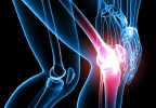 4 signs you might need a knee replacement - brought to you by Lakeland Health